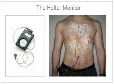3 - holter monitor 2