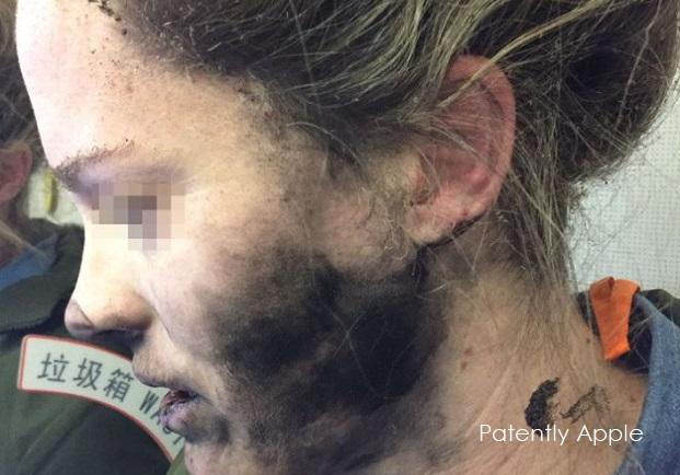 1AF X99 COVER headphone incident