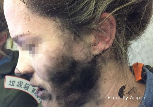 photo image Apple Blames Third Party Batteries as Cause of Apple Headphones blowing up and burning Passenger's Face