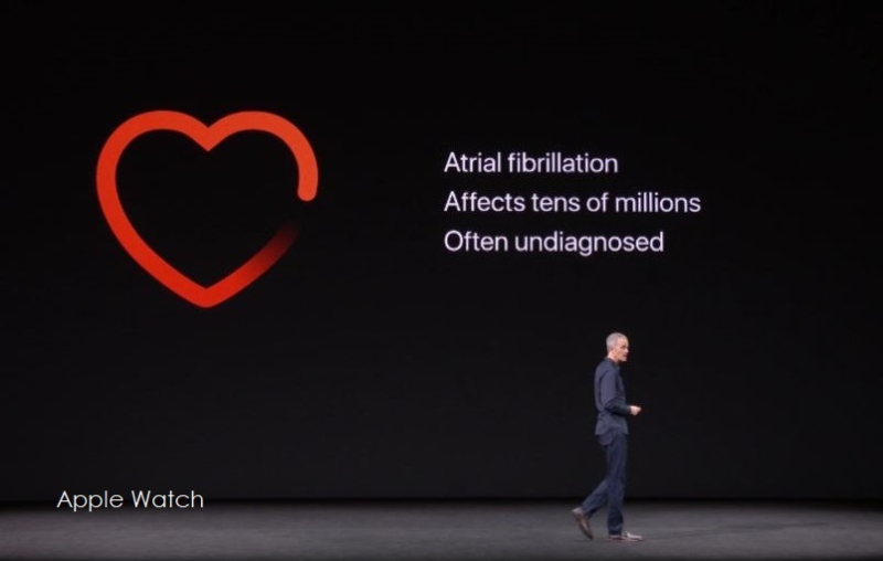 2af x9 heart apple watch