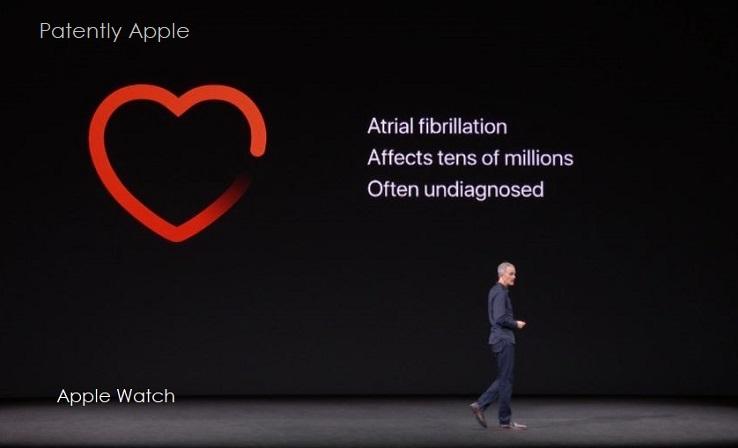 3 Artial Fibrillation  Apple Watch 3