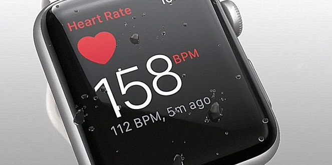 1 X Cover Apple Watch with Health sensors - report Apr 7  2018