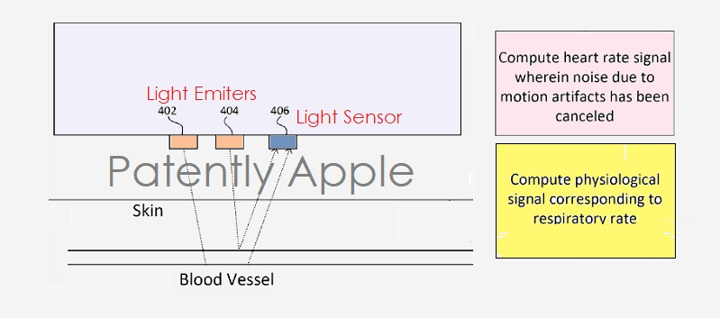1AF X99 APPLE PATENT APPLE WATCH HEALTH