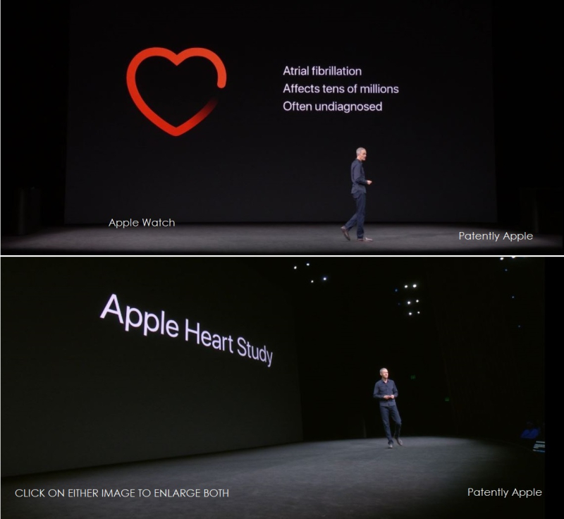 5 AF X  HEART APPLE WATCH 2017
