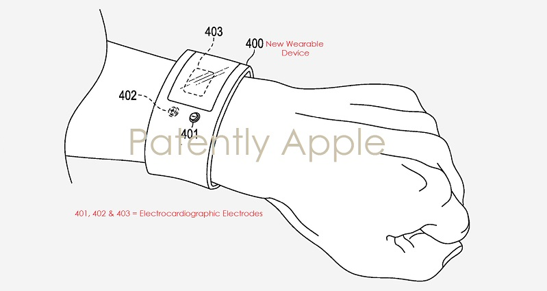 2 A PATENT FULFILLED ECG