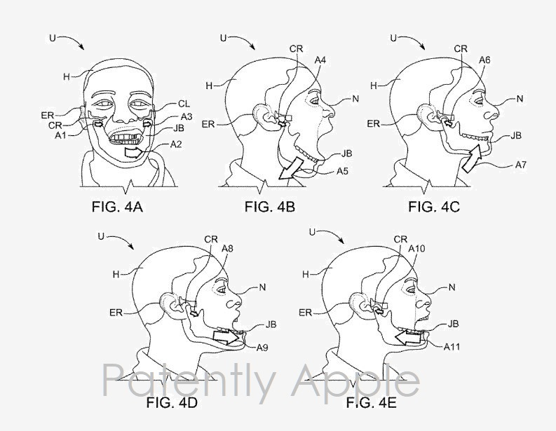 2aa Jaw movement assesssments apple patent figs 4a-4e  Apr 4  2019