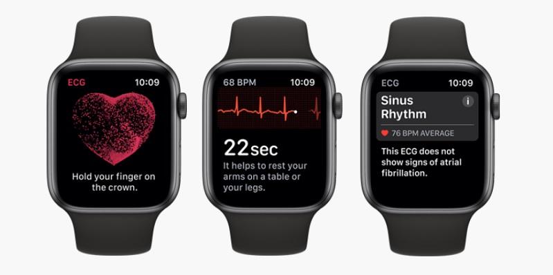 1 X ECG apple watch