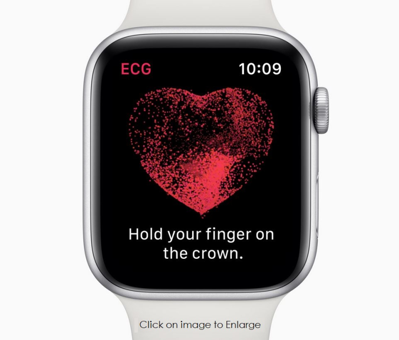 2 Apple Watch ECG