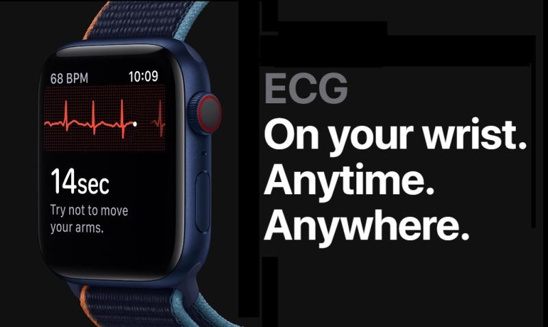 1 x Apple Watch ECG