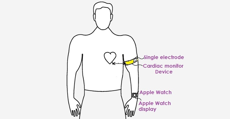 1 cover cardiac monitoring system